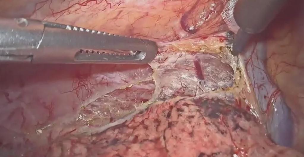 Linfadenectomía mediastínica total por toracoscopia en prono en el cáncer de esófago