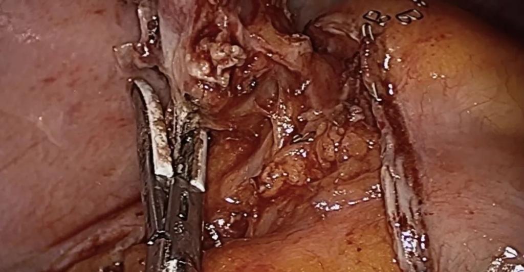 Opciones Técnicas en la Apendicectomía Laparoscópica
