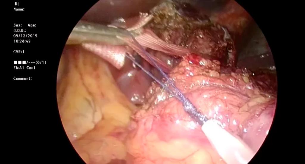 Cardioplastia laparoscópica como alternativa a la esofaguectomía en el fracaso de la miotomía previa por acalasia