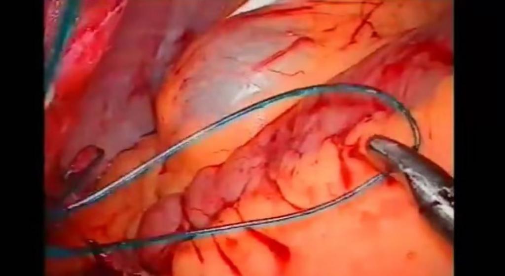 Cruce duodenal laparoscópico. Primer caso nacional y europeo