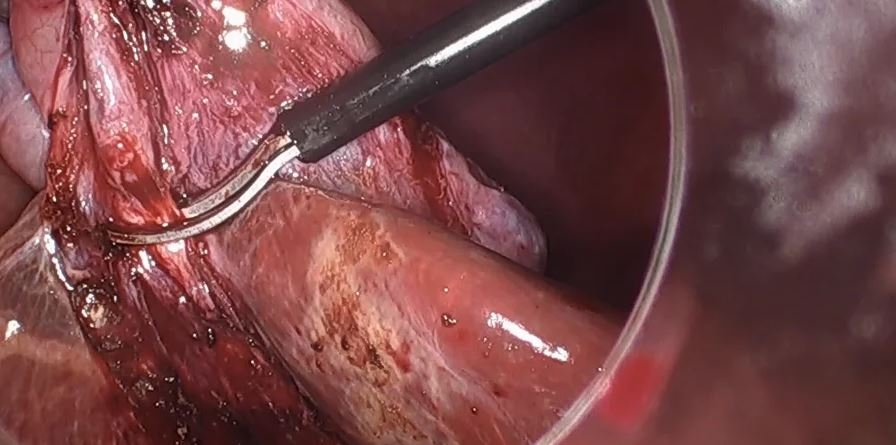 Colecistectomía laparoscópica en régimen de CMA