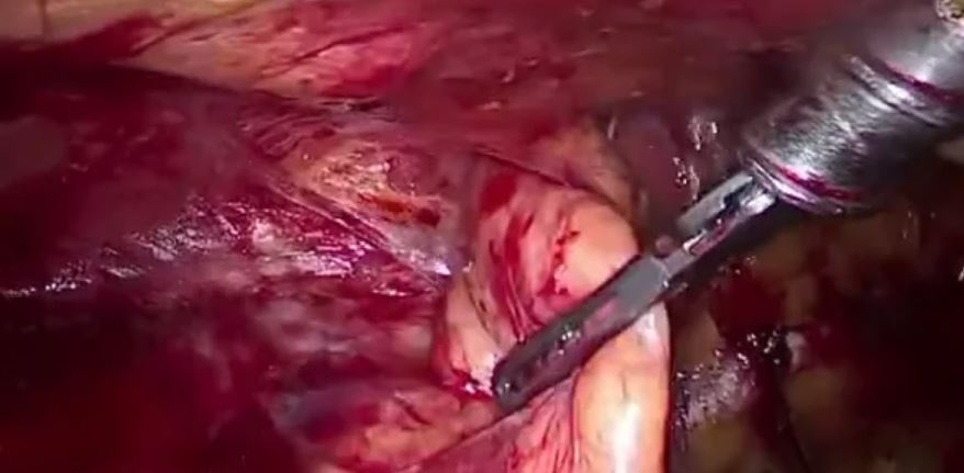 Hernioplastia inguinal laparoscópica en régimen de CMA