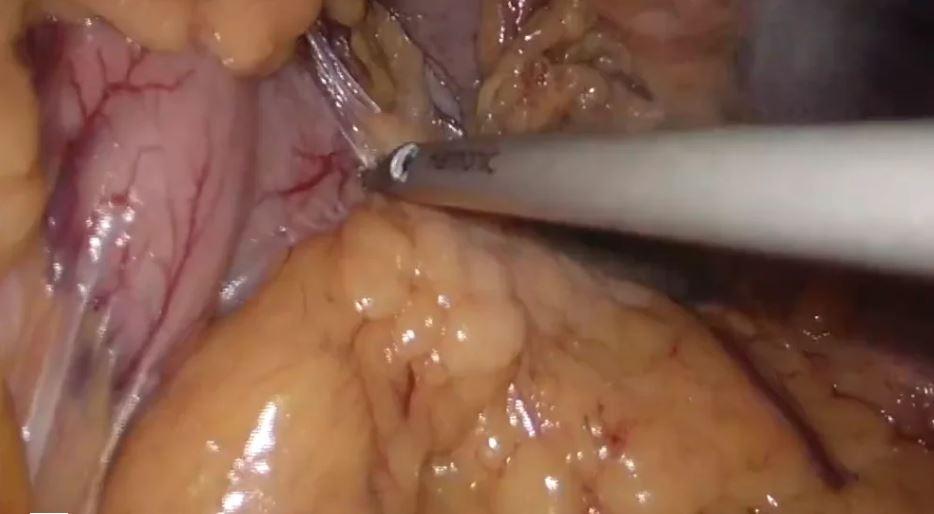 Gastrectomía total y esplenectomía laparoscópicas con linfadenectomía D2 guiada mediante verde de indocianina (ICG)