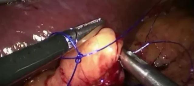 Nudo corredizo auto bloqueante en la gastrectomía vertical y otras suturas laparoscópicas