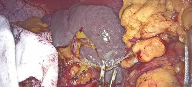 Colectomía total laparoscópica con exéresis mesocólica completa en colon derecho por adenocarcinoma del ángulo hepático en paciente con síndrome de Lynch