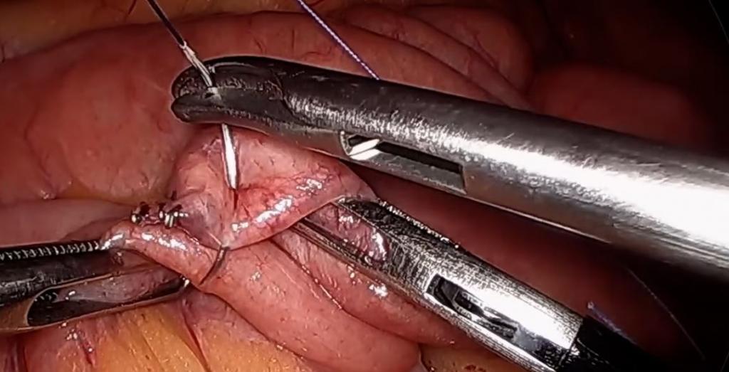 Bypass gástrico con anastomosis gastroyeyunal mecánica circular en 9 pasos