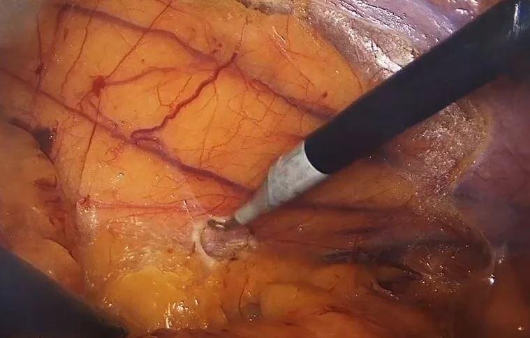 Colocación en decúbito lateral del paciente, un recurso para la movilización laparoscópica del ángulo esplénico del colon.