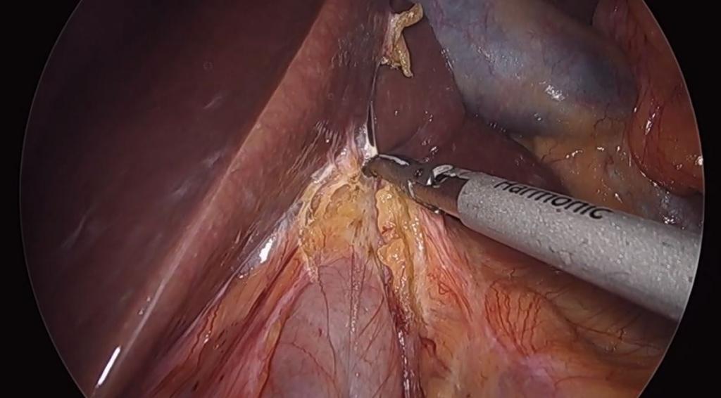 Resecciones hepáticas limitadas preservadoras de parénquima laparoscópicas guiadas por Eco-ICG por metástasis de cáncer colorrectal.