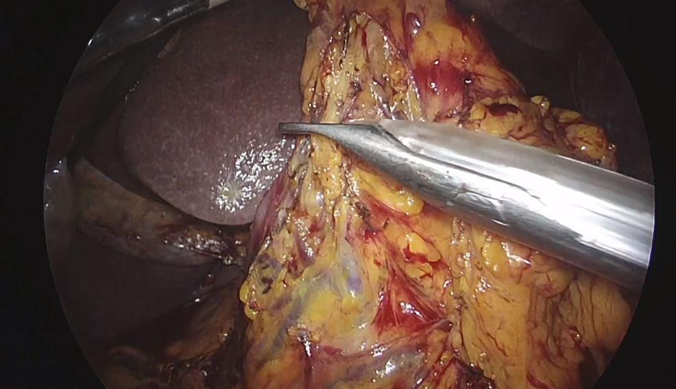 Gastrectomía totalmente mini-invasiva. Linfadenectomía D2.