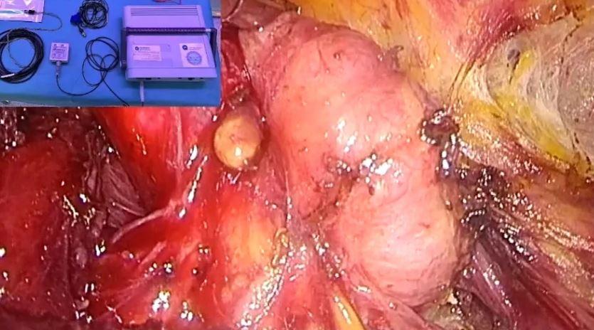 Tiroidectomía Endoscópica Transaxilar Derecha
